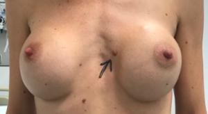 Correctie borstvergroting (dit zijn resultaten van andere centra die door dr Doornaert werden gecorrigeerd)